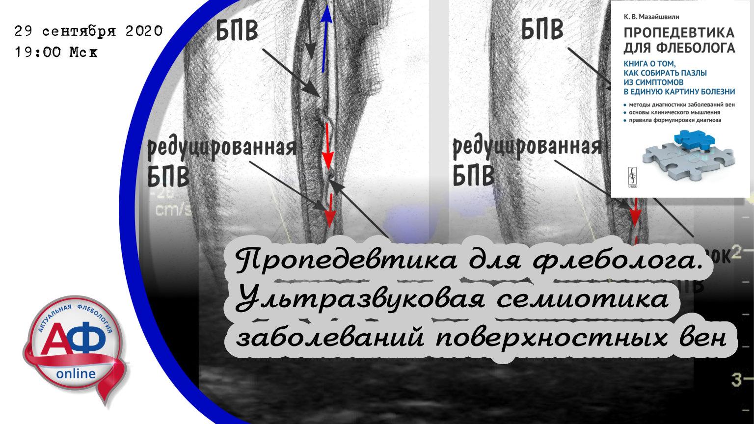 """Онлайн коллоквиум """"Ультразвуковая анатомия и семиотика заболеваний поверхностной венозной сети нижних"""""""