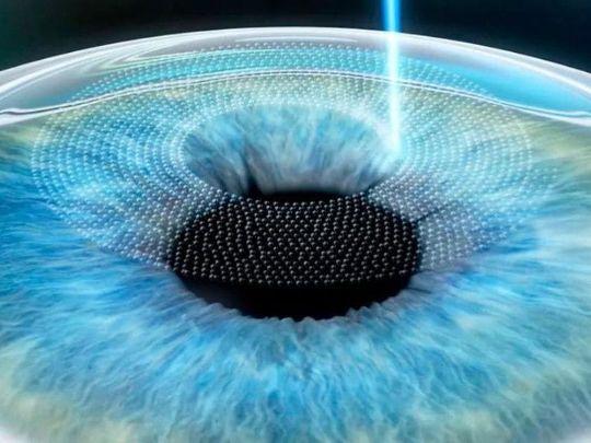 глаза, фемтоласик