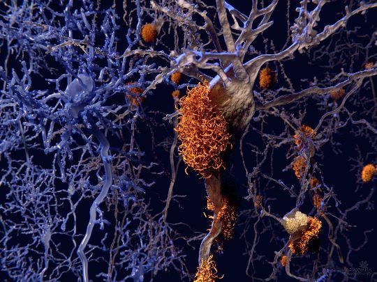 Нейроны пораженные болезнью Альцгеймера